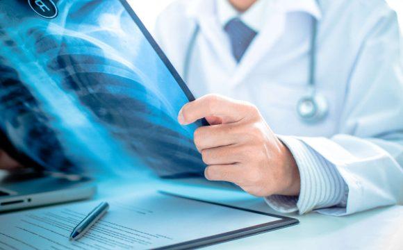 Medycyna Ortopedyczna wg Cyriax'a