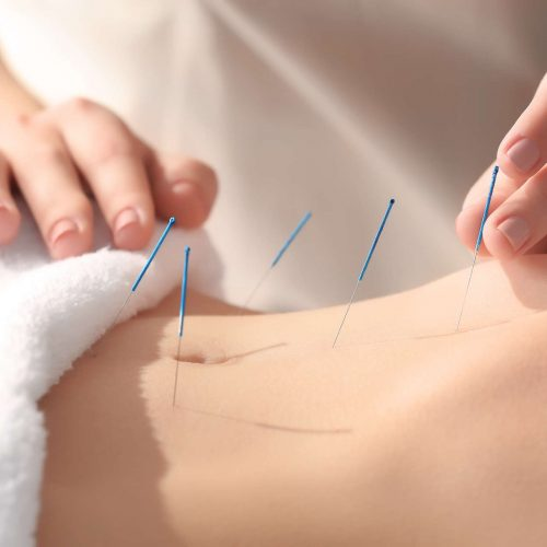 Dry Needling- sucha igłoterapia